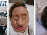 Charla Nash face transplant three views