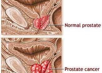 Researchers from Lund University have identified a method that may attack and destroy prostate cancer stem cells