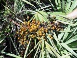 A Washington University School of Medicine in St Louis study found that saw palmetto supplement has no benefit for BPH patients