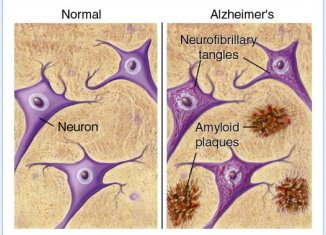 Uncontrolled type 2 diabetes could lead to amyloid plaques in the brain and Alzheimer's disease.