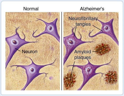 Alzheimers disease brain amyloid photo
