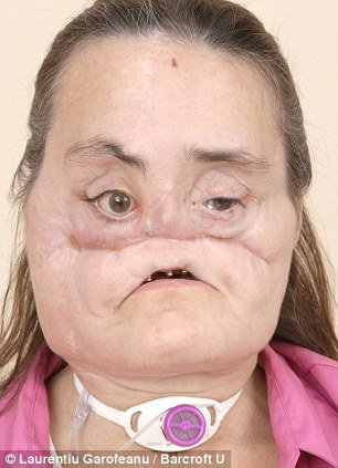 Connie Culp before face transplant in 2008