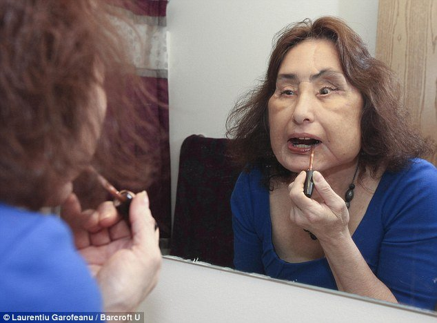 Connie Culp was the first person to receive a face transplant in the U.S in 2008, after her top lip, nose, roof of her mouth, one eye and both cheeks were destroyed by then husband Tom Culp, who brutally shot her in the face after flying into a rage