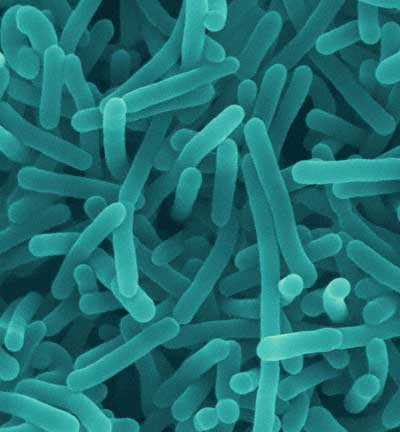 Listeria monocytogenes causes listeriosis, with fever, muscle aches and vomiting