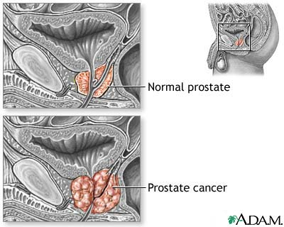 The study shows that prostate cancer death rate was 30 per cent lower in the group taking radium-223 and patients survived for 14 months on average compared with the other group which survived 11 months on average