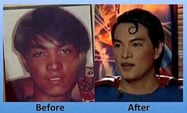 Herbert Chavez before and after plastic surgery