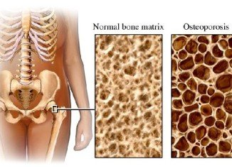 Osteoporosis occurs when bone mineral density is lower. The bones are fragile and break (fracture) easily.