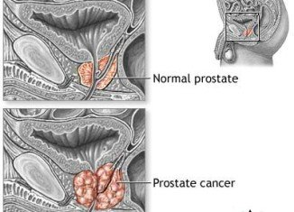 PSA test should not be a routine in preventing prostate cancer, says US Preventive Services Task Force