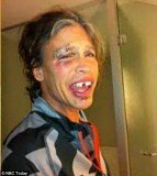Steven Tyler revealed on The Today Show an image of himself taken shortly after the fall in which he sported broken teeth and a nasty black eye