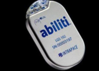 Abiliti is a gastric pacemaker, the latest hi-tech device in the battle of obesity, which works as a stomach implant that tricks the brain into feeling ful