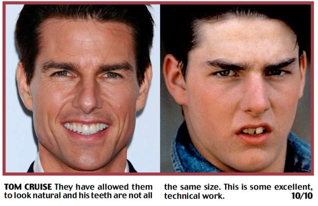 Harry Shiers evaluated Tom Cruise teeth improvement