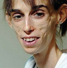 "Kate Chilver, 31, weighed 30 kg (66 lb) and was so thin that parts of her stomach and bowel had ""died"" through lack of blood supply"