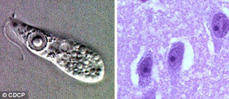 Naegleria fowleri causes amebic meningoencephalitis, a brain infection that leads to the destruction of brain tissue