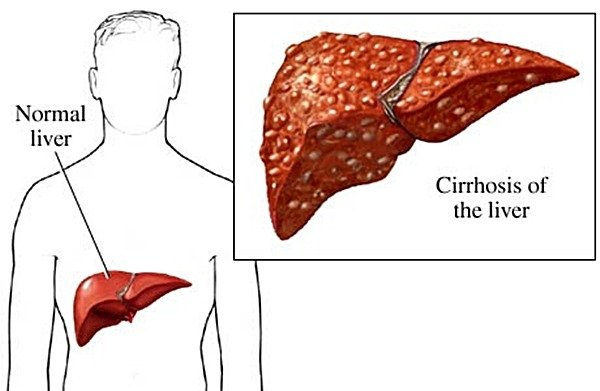 Chronic hepatitis C might lead to liver cirrhosis.