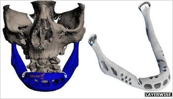 A lower jaw created by LayerWise 3D printer has been fitted to an 83-year-old woman's face in what doctors say is the first transplant of its kind