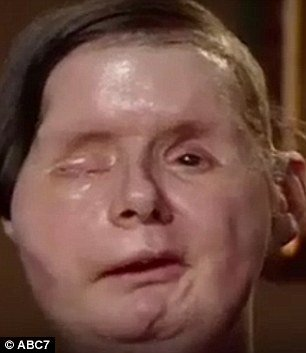 Charla Nash after face transplant
