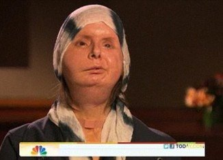 Charla Nash says she feels at home in her new skin two years after her face transplant