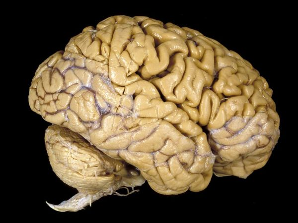 Human brain actually has 86 billion neurons, not 100 billion, as previously thought, according to a Brazilian neuroscientist