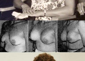 Timmie Jean Lindsey is the first woman who had a breast augmentation with silicone implants in 1962 at Jefferson Davis hospital in Houston