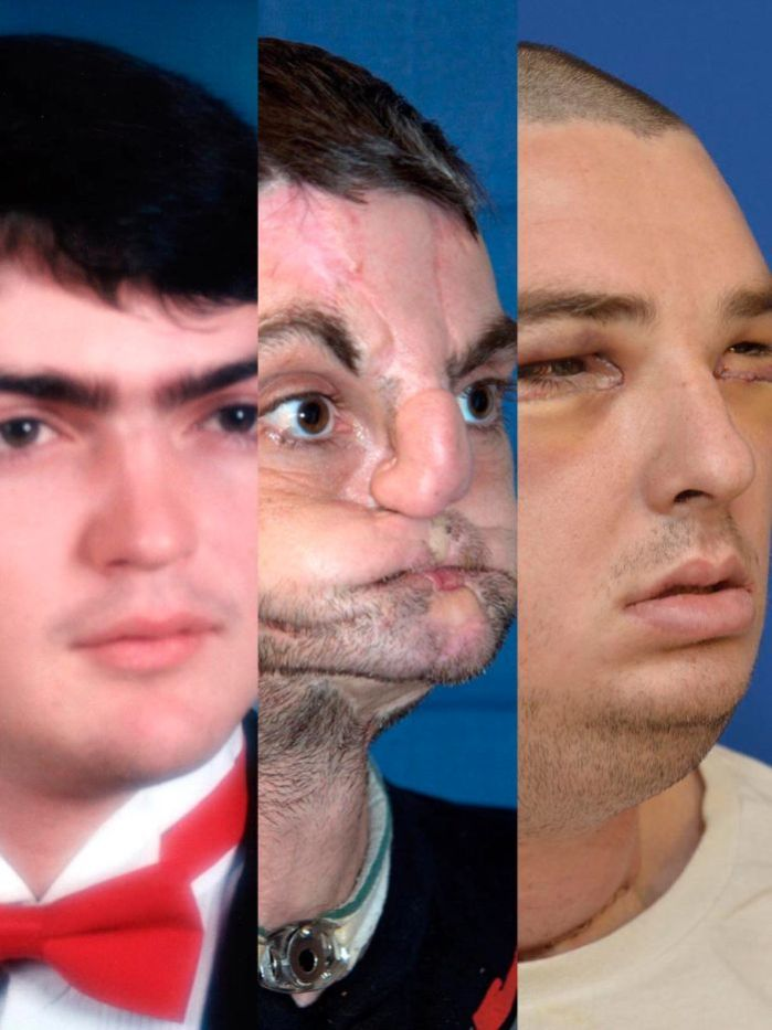 US doctors at the University of Maryland gave Richard Norris a new face, including jaw, teeth and tongue, in an operation that is the most extensive face transplant ever performed