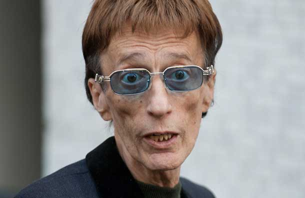 Bee Gees star Robin Gibb is still in coma after suffering from pneumonia