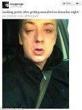 Boy George was injured as he left the Amadeus nightclub in Northallerton, North Yorkshire on Saturday evening