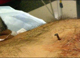 The 4-inch nail pierced the right side of Dennis Hennis' heart and he went into cardiac arrest