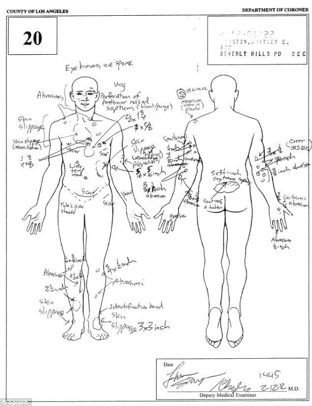 Whitney Houston autopsy report Page3