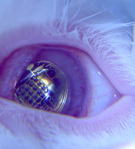 A bionic eye which is powered by light has been invented by scientists at Stanford University in California
