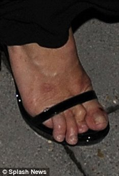 Kate Moss feet appeared to be disfigured as her toes were bent and claw like curling around her shoes  photo