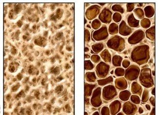 NASA scientists have discovered a new technique to detect osteoporosis bone loss at the earliest disease stages