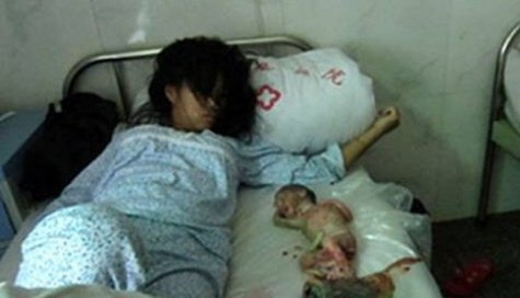 Feng Jiamei was forced into the abortion as she could not pay the fine for having a second child, US-based activists said
