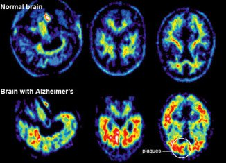 "A team at Washington University School of Medicine has assembled a ""timeline"" of the unseen progress of Alzheimer's before symptoms appear"