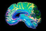 Bapineuzumab, made by Pfizer and Johnson & Johnson, was designed to halt build-up of plaque in the brain