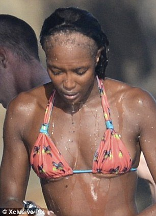 Naomi Campbell revealed her incredibly receding hairline, the result of her over-reliance on hair extensions