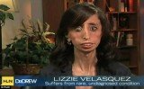 Lizzie Velasquez was born without adipose tissue, meaning she has no body fat and, despite eating up to 60 small meals a day, remains at a delicate 58 lbs