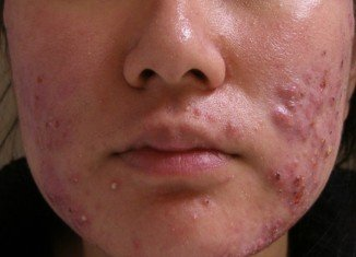 Scientists have discovered that a harmless virus that lives on our skin could be used as a treatment for acne