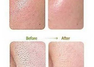 Before and after BB cream treatment