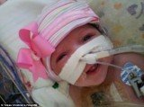 Audrina Cardenas, a baby girl who was born with her small heart beating outside of her body, is now remarkably recovering after a revolutionary surgery saved her life