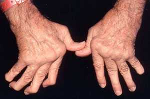Few complementary therapies appear to help musculoskeletal conditions like arthritis  photo