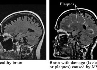 US researchers have announced that it may be possible to use a patient's own skin to repair brain damage caused by MS