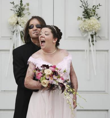 Dallas Wiens, who became the first person in the US to receive a full face transplant, got married to fellow burn patient Jamie Nash
