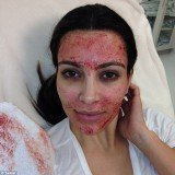 Kim Kardashian got a blood facial on Sunday's episode of her reality show Kourtney and Kim Take Miami