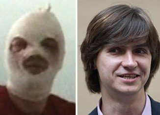 Sergei Filin's eyesight was damaged when a masked attacker threw sulphuric acid in his face