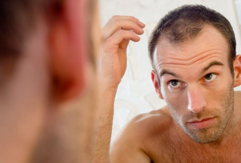 A Japanese study of nearly 37,000 people said balding men were 32 percent more likely to have coronary heart disease