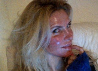 Brandi Glanville has shared a shocking photo to her Twitter fans revealing her red raw face