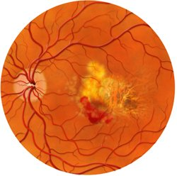 Macular degeneration is more common in old age