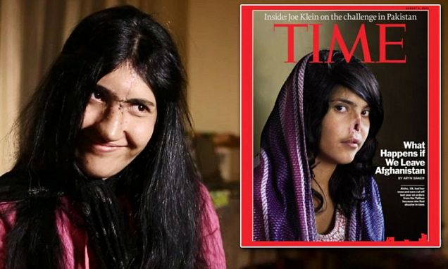 Aesha Mohammadzai has made international headlines in 2010 when she appeared on the now iconic cover of Time magazine with a gaping wound in the center of her face where a nose should be photo