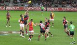 Australian Rules Football is a physical contact sport that is described as a cross between rugby and football