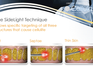 Cellulaze is the first scientifically validated laser cellulite treatment approved by FDA